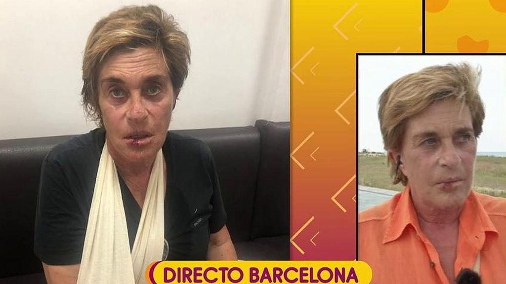 este-es-el-aspecto-de-chelo-tras-sufrir-una-caida-en-castelldefels-barcelona