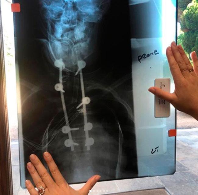 una-radiografia-de-su-espalda