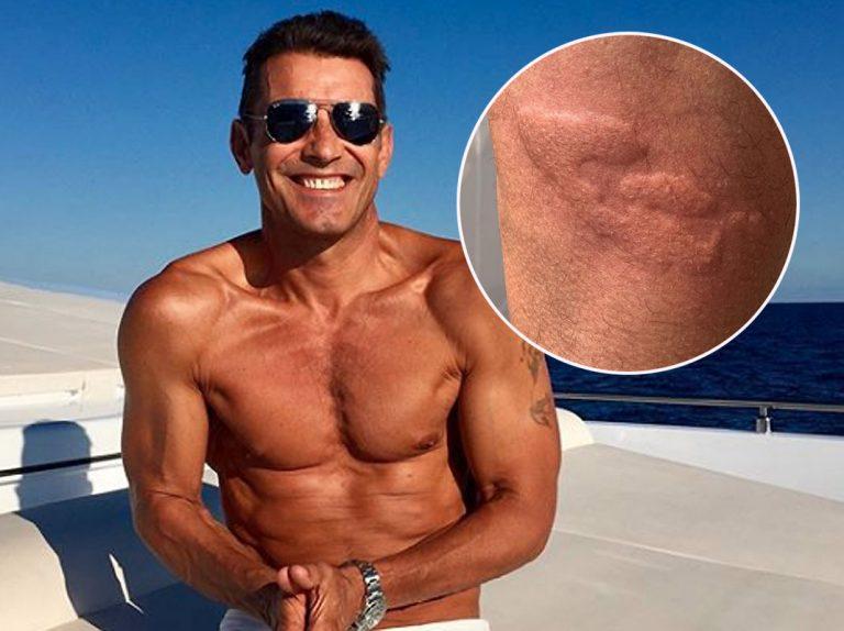 Jesús Vázquez sufre un accidente durante sus lujosas vacaciones en Formentera