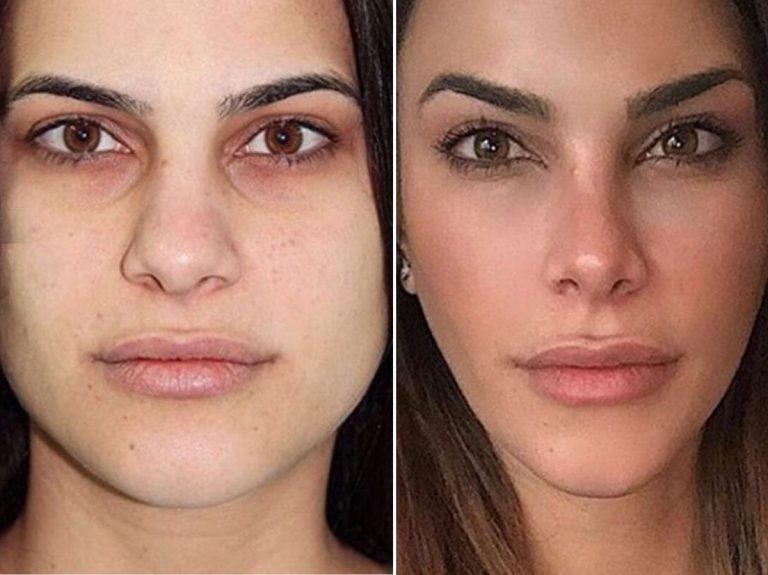 Los 11 retoques a los que se ha sometido Carla Barber para transformar su rostro