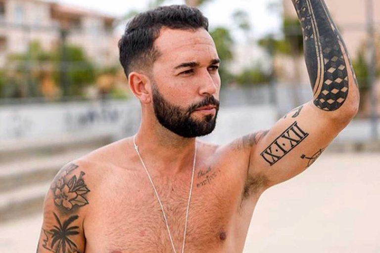 Omar Sánchez, el novio de Anabel Pantoja, se hace un injerto capilar