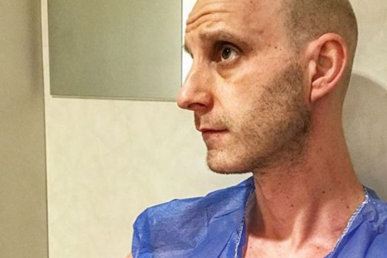 Vídeo: Dani Rovira muestra con humor cómo se somete a la radioterapia