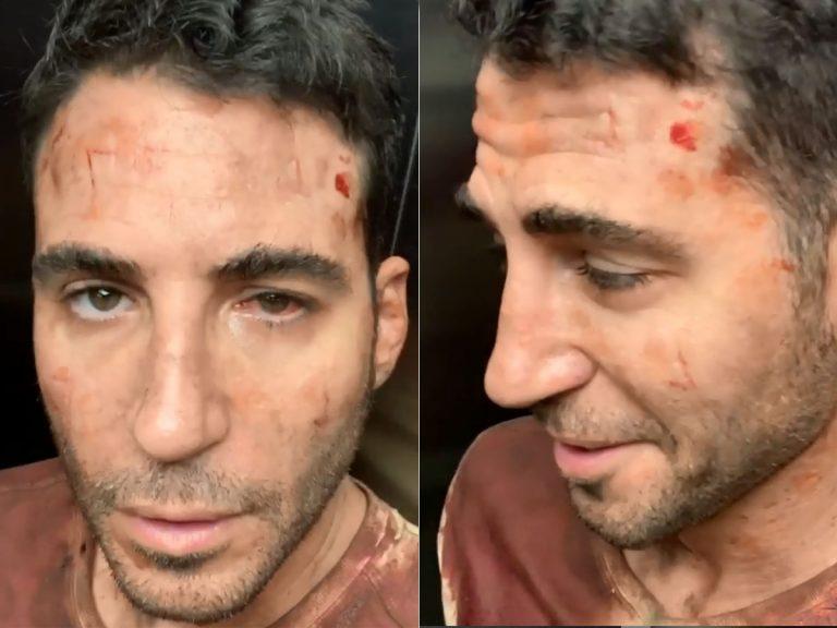 ¿Qué le ha pasado a Miguel Ángel Silvestre en la cara? ¿Un accidente?